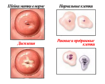 Диагностика рака шейки матки методом жидкостной цитологии в лаборатории ЭндоМедЛаб на Дмитровской Лабораторная диагностика и про